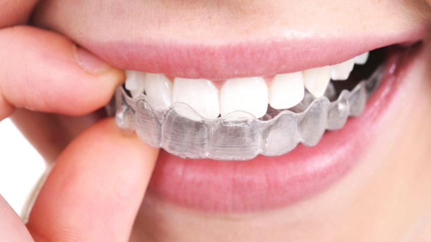 Ortodonzia invisibile Fiumicino: Studio dentistico Sorrentino